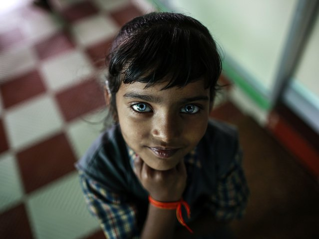 A girl who suffers from hearing and speech disorders reacts to the camera at a rehabilitation centre supported by Bhopal Medical Appeal, for children who were born with mental and physical disabilities, in Bhopal November 11, 2014.(Photo by Danish Siddiqui/Reuters)