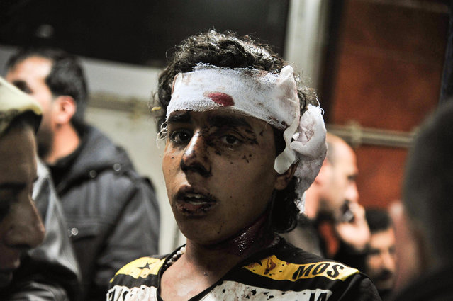 In this photo released by the Syrian official news agency SANA, an injured victim of the triple blast in Sayyida Zeinab, a predominantly Shiite Muslim suburb of the Syrian capital Damascus arrives to a hospital to receives treatment, Syria, Sunday, February 21, 2016. (Photo by SANA via AP Photo)