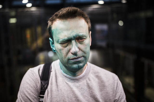 In this photo taken on Thursday, April 27, 2017, Russian opposition leader Alexei Navalny poses for a photo after unknown attackers doused him with green antiseptic outside a conference venue in Moscow, Russia. Navalny, who authored a documentary about the Russian prime minister's alleged corrupt wealth that was viewed more than 20 million times online, was the key force behind nationwide anti-government rallies in March, Russia's largest and most widespread in years. (Photo by Evgeny Feldman/Pool Photo via AP Photo)