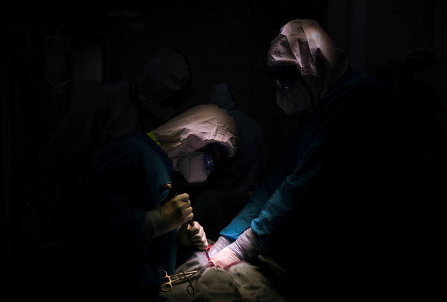 Doctor Islam Muradov (R) performs emergency surgery in the operating room of the City Clinical Hospital Number 15 named after O. Filatov, which delivers treatment to patients infected with the coronavirus disease (COVID-19), in Moscow, Russia on May 25, 2020. (Photo by Maxim Shemetov/Reuters)