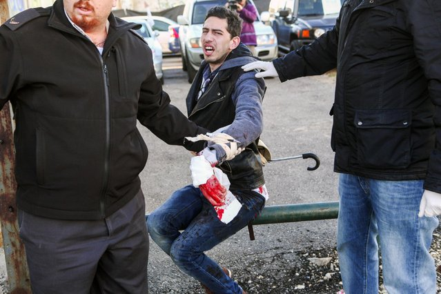 A wounded man sits on a railing at the scene of a stabbing attack in Tel Aviv January 21, 2015. A Palestinian man stabbed up to 10 people on a commuter bus in central Tel Aviv on Wednesday before he was shot in the leg by a prison security officer as he tried to escape, police said. (Photo by Yehoshua Yosef/Reuters)