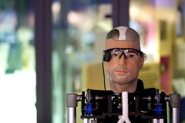 Bionic Man Has Fully Functional Mechanical Organs