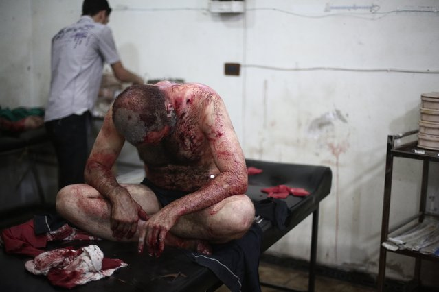 A wounded man sits on bed as he is treated at a makeshift hospital following reported shelling by Syrian government forces in Douma, northeast of Damascus, on August 3, 2014. At least 32 people were killed in Syrian regime air raids on two rebel-held towns near the capital. The rebel bastion of Douma has been besieged by regime forces for more than a year, and it has been the target of regular bombardment over past weeks. (Photo by Abd Doumany/AFP Photo)