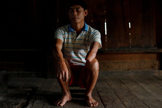 Mr. Soud, 40, who was injured by an unexploded bomb dropped by the U.S. Air Force planes during the Vietnam War when he was 10 years old, sits in his house in the village of Kakho in Xieng Khouang province, Laos September 3, 2016. (Photo by Jorge Silva/Reuters)
