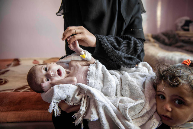 Severely malnourished infants also struggling against infections at the Sabeen hospital in Sana'a, Yemen, 18 November 2018. (Photo by Jack Hill/The Times)
