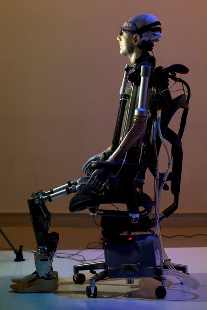 Bionic Man Has Fully Functional Mechanical Organs