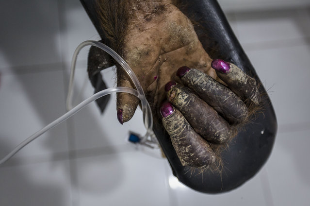 Nail polish is seen on an sumatran orangutan (Pongo abelii) to distract him after the surgery at Sumatran Orangutan Conservation Programme's rehabilitation center on November 12, 2016 in Kuta Mbelin, North Sumatra, Indonesia. The Orangutans in Indonesia have been known to be on the verge of extinction as a result of deforestation and poaching. Found mostly in South-East Asia, where they live on the islands of Sumatra and Borneo, the endangered species continue to lose their habitat as a result of corporate expansion in a developing economy. Indonesia approved palm oil concessions on nearly 15 million acres of peatlands over the past years and thousands of square miles have been cleared for plantations, including the lowland areas that are the prime habitat for orangutans. (Photo by Ulet Ifansasti/Getty Images)