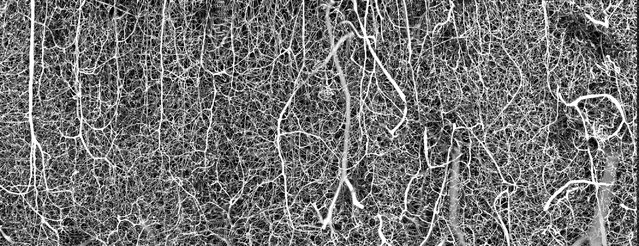 Sixth place: a 3D vasculature of an adult mouse brain (somatosensory cortex). (Photo by Dr. Andrea Tedeschi/The Ohio State University/Wexner Medical Center/Nikon Small World Photomicrography 2021)