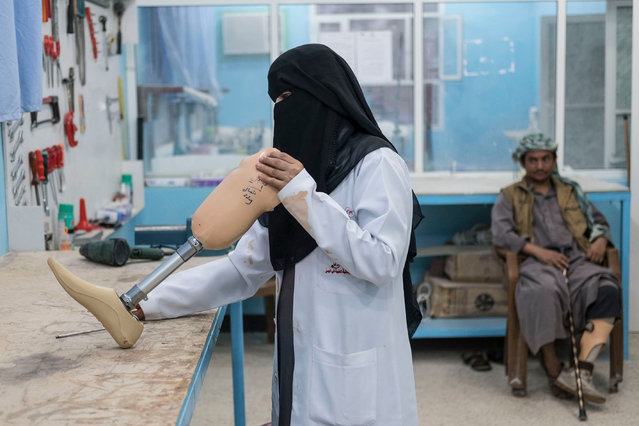 Fayda Ali Ali, a nurse trained in prosthetics, adjusts a limb in the orthopaedic ward of a hospital in Marib, Yemen on 20 February 2018. The country has been in the midst of a civil war since 2015. (Photo by Heathcliff O'Malley/Daily Telegraph)