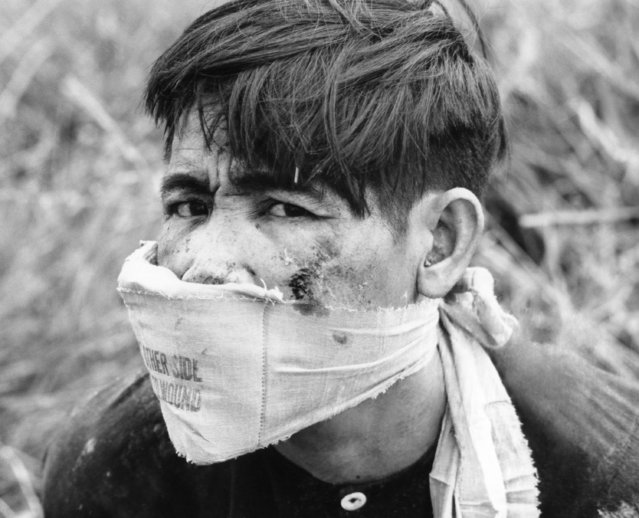 A Viet Cong prisoner looks at his South Korean captors from behind a bandage on March 8, 1968. A South Korean division captured the guerrilla while on an operation near the coastal city of Qui Nhon in Central South Vietnam. (Photo by AP Photo)