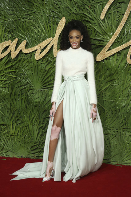 Model Winnie Harlow poses upon arrival at The British Fashion Awards 2017 in London, Monday, December 4th, 2017. (Photo by Joel C Ryan/AP Photo)