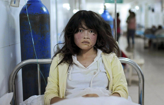 Song Xuxia, 19, receives treatment at a hospital after a 6.6 magnitude earthquake hit Minxian county, Dingxi, Gansu province July 23, 2013. The death toll from two earthquakes in China's western Gansu province has climbed to 95, with more than 1000 people injured, after around 51,800 buildings collapsed and tens of thousands more were badly damaged. (Photo by Reuters/Stringer)