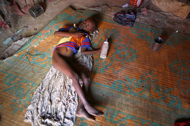 """A photograph made available on 27 March 2017 shows a malnourished young Internally Displaced Person (IDP) with a mental disability laying inside his family's shelter in an IDP camp in the outskirts of Qardho in Somalia's semi-autonomous region of Puntland, Somalia, 26 March 2017. The food crisis caused by lack of rainfall in the region affects 5.6 million people in Ethiopia according to the Red Cross, which aims to raise 13.8 million US dollars to """"provide food for tens of thousands of people, screen children for malnutrition, and improve access to health services and clean water"""". East Africa has been suffering from a severe drought since 2015 due to the El Nino weather phenomenon. (Photo by Dai Kurokawa/EPA)"""