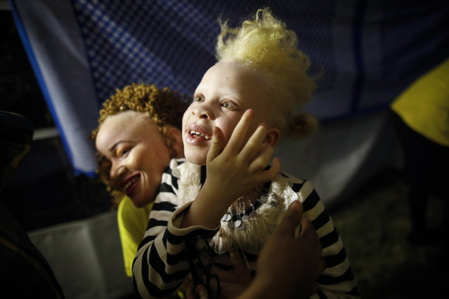 Eight-year-old albino girl Rebecca Zawadi plays with an woman prior to he fashion show during the Mr. & Miss Albinism East Africa contest in Nairobi, Kenya, 30 November 2018. Hudreds of abino men, women and children participated in the contest to raise awareness on discrimination and stigma against albinism in the region. (Photo by Dai Kurokawa/EPA/EFE)