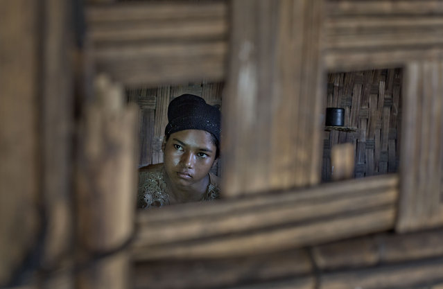 In this In this Tuesday, May 12, 2015, photo 17-year old Rorbiza rests at camp home of Dapaing, North of Sittwe, western Rakhine state, Myanmar, after escaping from a human trafficking boat. (Photo by Gemunu Amarasinghe/AP Photo)