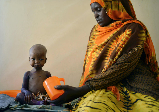 A malnourished child is fed a special formula by her mother at a regional hospital  in Baidoa town, the capital of Bay region of south-western Somalia where severe cases of malnourishment and cholera are reffered by a UNICEF- funded health programme for children and adults displaced by drought on March 15, 2017. (Photo by Tony Karumba/AFP Photo)