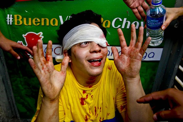 An opposition student protester gestures after injuring his left eye after supporters of the late President Hugo Chavez hurled rocks and bottles during an attack on the student protesters who were marching against perceived bias by Venezuela's electoral council, on March 21, 2013. (Photo by Ariana Cubillos/Associated Press)