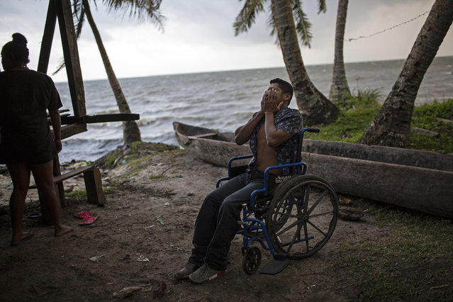 """In this January 31, 2018 photo, 28-year-old lobster diver Charles """"Charly"""" Melendez puts his hands over his face in frustration as he comes to terms with having to rely on a wheelchair to get around, in Puerto Lempira, Honduras. For a man who always made his living diving, it's a nightmare being confined to a wheelchair. """"I still can't stand up by myself"""", he said. """"I can't sit for a long time; after an hour my body hurts"""". (Photo by Rodrigo Abd/AP Photo)"""