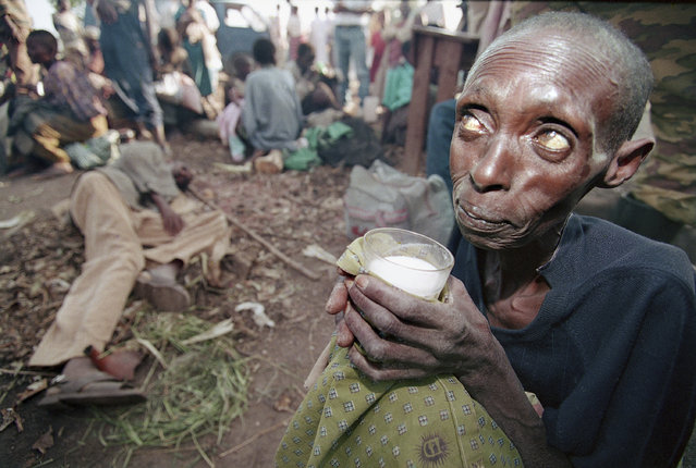 In this June 6, 1994, file photo, a starving woman, one of thousands of civilians caught in the fighting between government troops and the Rwandan Patriotic Front (RPF) rebels, sips milk at a makeshift health clinic in Ruhango, where doctors say 20 to 25 people die every day from disease and hunger, about 30 miles southwest of the capital Kigali, in Rwanda. (Photo by Jean-Marc Bouju/AP Photo/File)