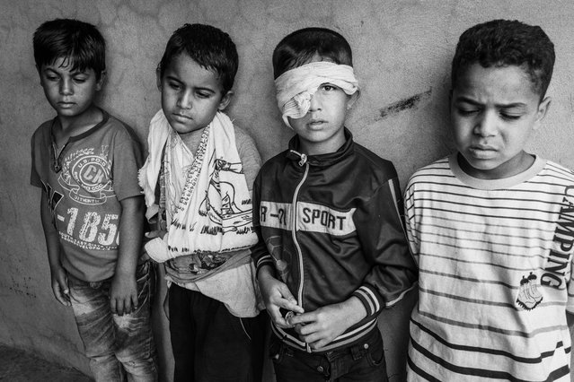 "Children injured in a landmine explosion in Iraq in 2016. Ali lost his left eye: ""We were playing football and we found something metallic, it was a white colour. We didn't know what it was and we played with it and tried to open it. It exploded"". (Photo by Sean Sutton for the Mines Advisory Group/The Guardian)"