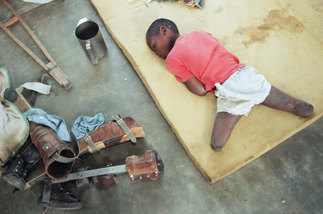 In this June 9, 1994, file photo, a young orphan, his legs amputated below the knee, rests on a foam cushion near his artificial limbs at an orphanage in Nyanza, about 35 miles southwest of the capital Kigali, Rwanda. The scale of the killings in 1994 was unimaginable but the reporting and photographs taken at the time helped to inform the world of the horrors of the genocide. (Photo by Jean-Marc Bouju/AP Photo/File)