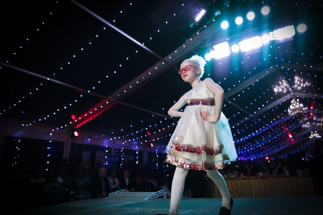 Shirlyne, a seven-year-old albino girl, takes to the catwalk during a fashion show held for the Mr. & Miss Albinism East Africa contest in Nairobi, Kenya, 30 November 2018. (Photo by Dai Kurokawa/EPA/EFE)