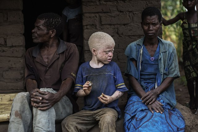 An albino child sits between his parents in the traditional authority area of Nkole, Machinga district, on April 17, 2015. Six albinos have been killed in the poor southern African nation since December, according to the Association of Persons with Albinism in Malawi. (Photo by Gianluigi Guercia/AFP Photo)