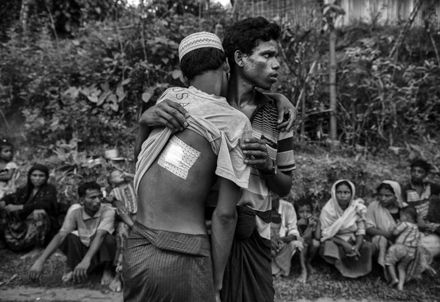 A Rohingya refugee man who was shot in the back by the Myanmar army is helped by a relative after crossing the border to the Bangladesh side of the Naf River while fleeing Myanmar, on September 24, 2017 in Cox's Bazar, Bangladesh. (Photo by Kevin Frayer/Getty Images)