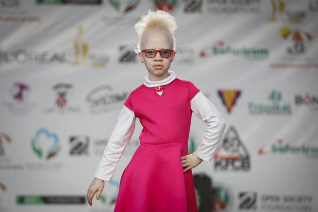 An albino girl walks on a runway as she rehearses for a fashion show prior to the Mr. & Miss Albinism East Africa contest in Nairobi, Kenya, 30 November 2018. (Photo by Dai Kurokawa/EPA/EFE)
