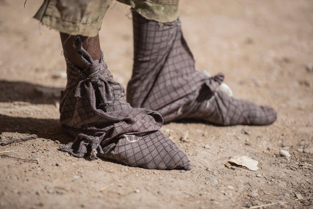 A frankinsence tapper wears cloth wrapped on his feet to keep sticky resin from his skin and shoes near Gudmo, Somaliland, a breakaway region of Somalia on August 2, 2016. (Photo by Jason Patinkin/AP Photo)