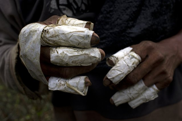 This June 20, 2015 photo shows the fingers of laborer Walter Perez wrapped in tape as a form of protection when removing coca leaves from their stems. Pickers earn about 33 cents per kilo (2.2 pounds) of coca leaf, adding up to about $16 a day for the average yield. (Photo by Rodrigo Abd/AP Photo)