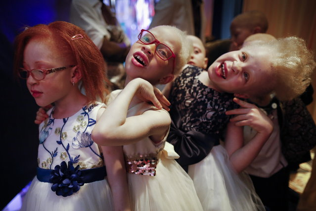 Albino girls (L-R) Elsie Lynn, 6, Shirlyne, 7, and Rebecca Zawadi, 8, poses for a photographer backstage before their fashion show during the Mr. & Miss Albinism East Africa contest in Nairobi, Kenya, 30 November 2018. (Photo by Dai Kurokawa/EPA/EFE)