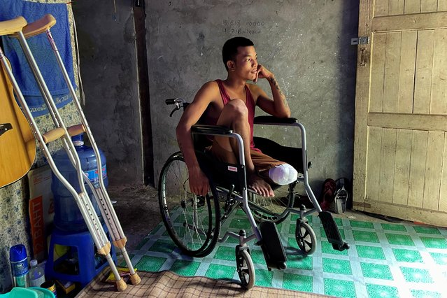 """Ko Phyo, 24, a protester who lost a leg during an anti-coup protest, sits in his wheelchair at home on the outskirts of Yangon, Myanmar, April 24, 2021. The bullet that hit Ko Phyo severed three arteries. The soldier who fired the shot removed it with a knife, and a local policeman he knew took him to a military hospital, a journey that took more than two hours, he said. """"I started feeling the pain and I couldn't bear it. I told them to cut off my leg immediately. They cut it on the seventh day"""". (Photo by Reuters/Stringer)"""