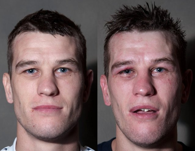 Boxing Before And After By Howard Schatz