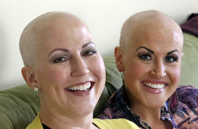In this Thursday, May 26, 2016, photo, Annette Page, left, and her sister Sharee Page, pose for a photograph at Sharee's home during an interview, in Farmington, Utah. The two Utah sisters have received a breast cancer diagnosis within about two weeks of one another, a coincidence that doctors say is extremely rare, but gives them the chance to undergo chemotherapy together, shave each other's heads and discuss their identical symptoms. (Photo by Rick Bowmer/AP Photo)