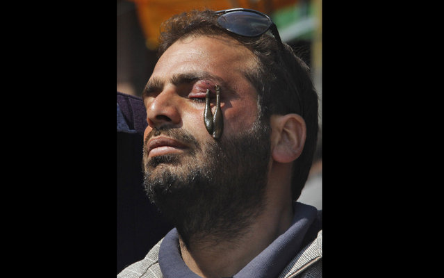 Leeches suck blood from the eye of a man for a medical treatment, outside of Srinagar, India, on March 21, 2013.  Traditional health workers in Indian-controlled Kashmir use leeches to treat skin diseases and ailments such as arthritis, gout, chronic headaches and sinusitis. (Mukhtar Khan/Associated Press)