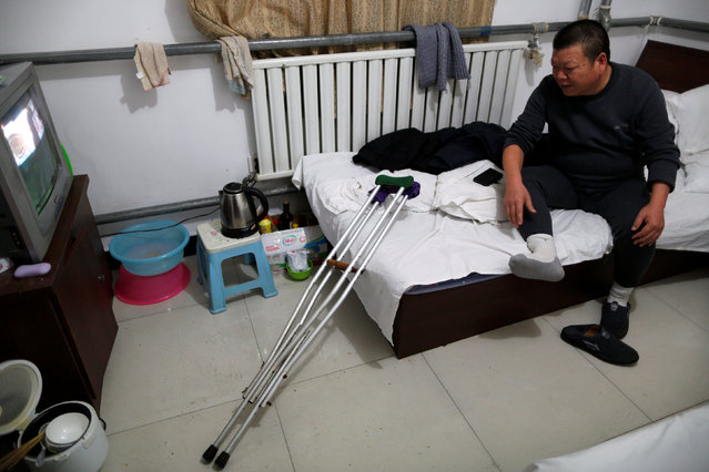 Yuan Yunping, who suffers from melanoma of the foot, watches TV in his room at the accommodation where some patients and their family members stay while seeking medical treatment in Beijing, China, January 13, 2016. (Photo by Kim Kyung-Hoon/Reuters)