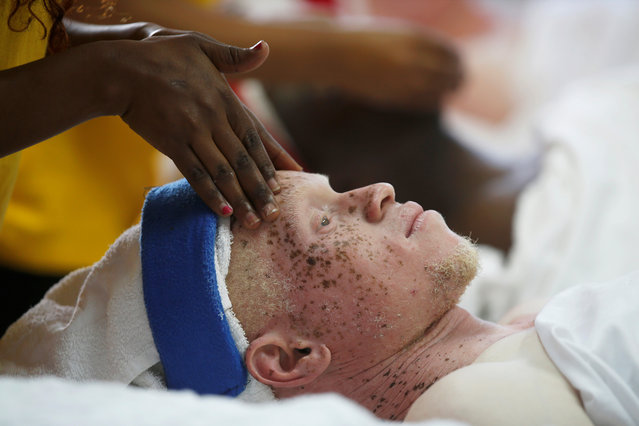 A participant receives a beauty treatment before the Mr & Miss Albinism Kenya Beauty Pageant 2018 in Nairobi, Kenya, November 30, 2018. (Photo by Baz Ratner/Reuters)
