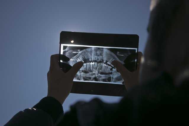 A man uses a dental X-ray to better observe the solar eclipse in Kosovo capital Pristina on Friday, March 20, 2015. Clouds moving over the country allowed only brief views of the eclipse which in southern Europe was partial. (Photo by Visar Kryeziu/AP Photo)