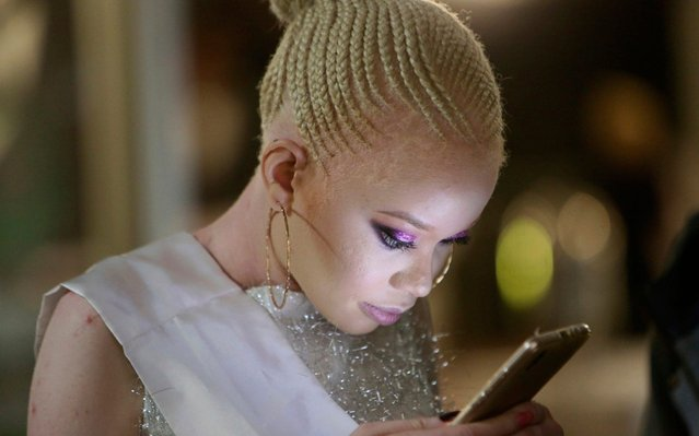 A contestant looks at her mobile phone during the Mr and Miss Zimbabwe Albinism pageant held in Harare, early Saturday, May 25, 2019. About 70,000 of Zimbabwe's estimated 16 million people are born with albinism, according to government figures. They often stand out, making them a subject at times of discrimination, ridicule and dangerously misguided beliefs. The Mr. and Miss Albinism Zimbabwe competition, now in its second year, is a chance to push back. (Photo by Tsvangirayi Mukwazhi/AP Photo)