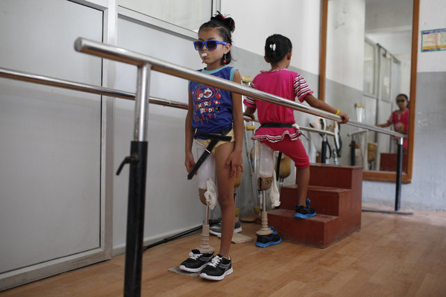 In this October 16, 2015 photo, amputee victims in Nepal's massive 2015 earthquake, Nepalese girls Khendo Tamang, left, and Nirmala Pariyar, both 8,  practice walking with  new prosthetic legs at a clinic in Kathmandu, Nepal. Spending months together with surgeries and the following physical therapy, both girls were soon inseparable in the and relied on their friendship to help ease the emotional wounds. (Photo by Niranjan Shrestha/AP Photo)