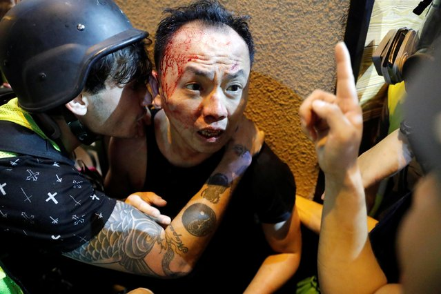 An injured man receives help from journalists after he was allegedly beaten by the anti-government protesters, in Hong Kong, China, September 29, 2019. (Photo by Tyrone Siu/Reuters)