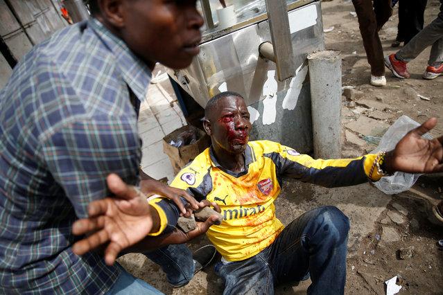 An injured supporter of Kenyan opposition leader Raila Odinga receives assistance in Nairobi, Kenya on November 17, 2017. (Photo by Baz Ratner/Reuters)
