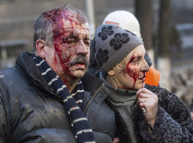 Wounded people are seen after clashes with riot police in central Kiev, on February 18, 2014. (Photo by Vlad Sodel/Reuters)