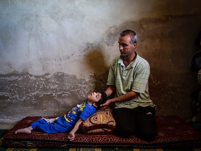 Syrian man, Ahmed, sits next to his daughter Reem, who is suffering disabilities due to injuries sustained in government shelling, at their home in Daraa, Syria, 30 May 2016. According to local sources, the father is taking care after two daughters suffering disabilities due to injuries they sustained in government shelling two years ago in Daraa al-Balad. The father is not working and treatment became unavailable since a whole year. (Photo by Mahmoud Al-Hamza/EPA)