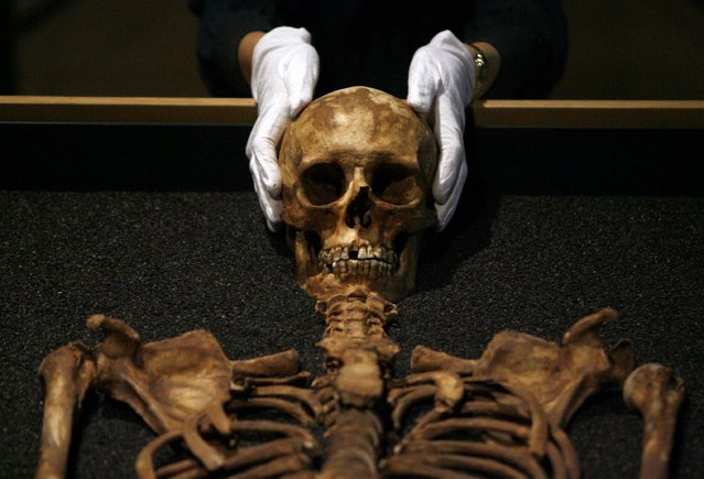 "A worker at the Wellcome Collection places her hands on a skull during the press preview of the ""Skeletons: London's buried bones"" exhibition in London July 22, 2008. The exhibition comprises 26 skeletons from the Museum of London's centre of human bioarcheology and aims to show how Londoners lived and died over the last 2,000 years. (Photo by Andrew Winning/Reuters)"