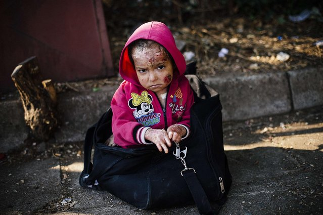A Syrian child injured from a chemical attack according to her father, waits to reach a train heading to the border with Serbia at the train station in Gevgelija, on the Macedonian-Greek border on August 4, 2015. (Photo by Dimitar Dilkoff/AFP Photo)