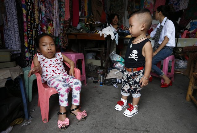 A boy stands next to Zhang Huimin (L), a 17-year-old girl who suffers from a genetic disorder known as Mucopolysaccharidosis (or MPS), which is caused by the body's inability to produce specific enzymes, at a tailor shop owned by Zhang's mother in Yuhuan county, Zhejiang province September 17, 2014. (Photo by William Hong/Reuters)