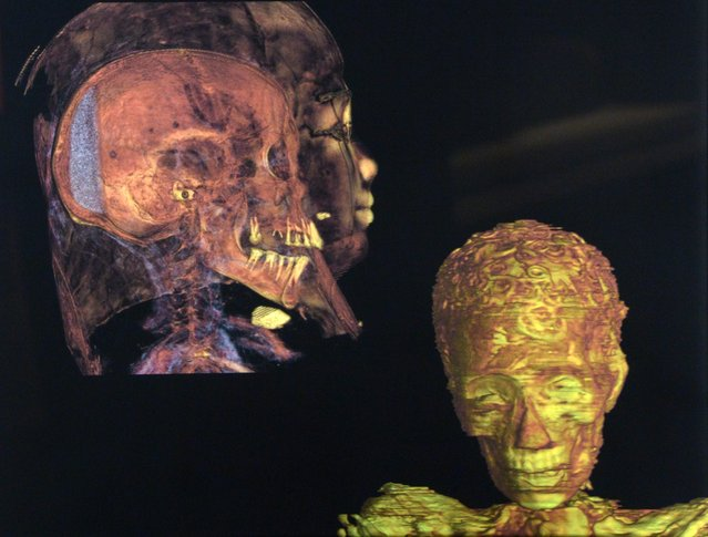 "A CT scan shows the skull of the Roman-era (30BC-AD 395) 'Gilded Lady' Nubian mummy inside her sarcophagus (L) as well as a 3D depiction of her head, displayed at the ""Mummies: New Secrets from the Tombs"" exhibition at the Natural History Museum in Los Angeles, California, USA, 10 September 2015. (Photo by Mike Nelson/EPA)"