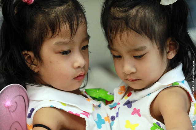 Surgeons Prepare To Separate Conjoined Twin Toddlers